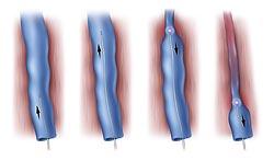 лазерное лечение варикоза