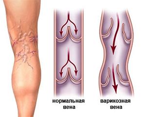 Операция варикоз