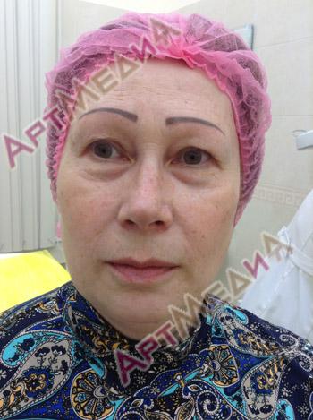 Пептидная терапия - до