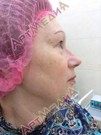 Пептидная терапия - после